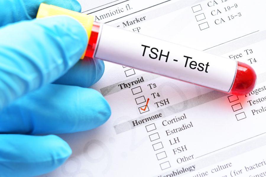TSH norma - badanie tarczycy