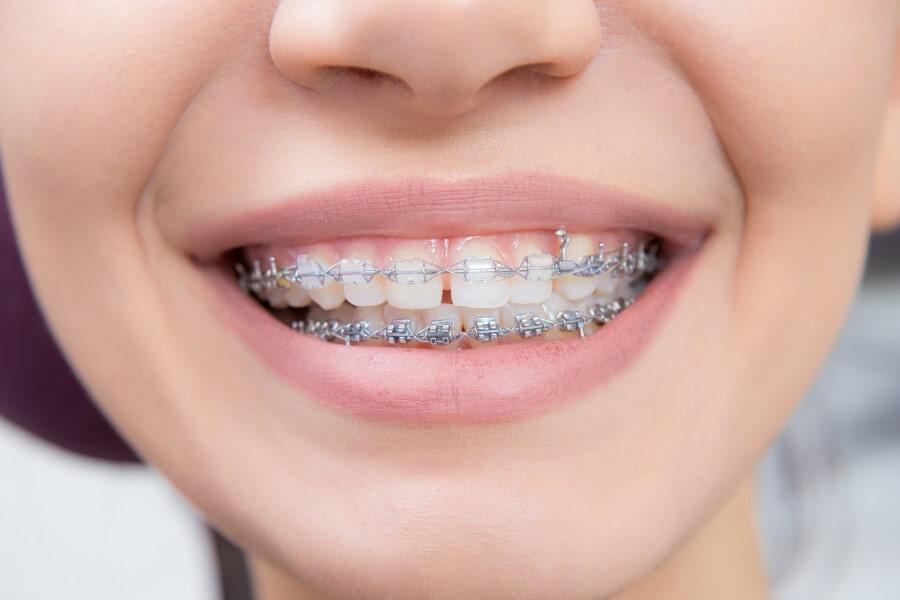 Zbliżenie na kobiecy uśmiech. Na zębach jest widoczny aparat ortodontyczny.