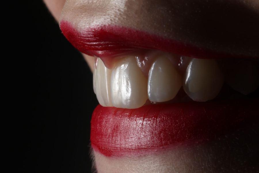 białe plamy na zębach