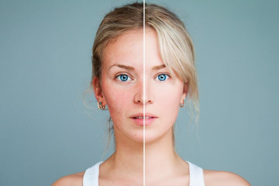 Zdjęcie twarzy kobiety, podzielone. Po lewej stronie cera podrażniona, po prawej zdrowa.