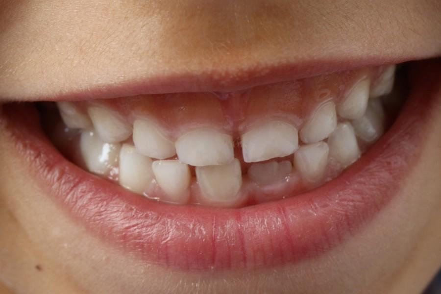 Czy warto leczyć zęby mleczne?