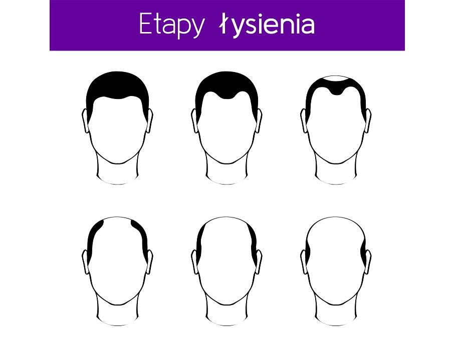 Etapy łysienia