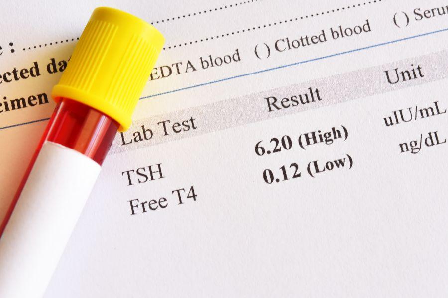 FT4 - badanie hormonu tarczycy