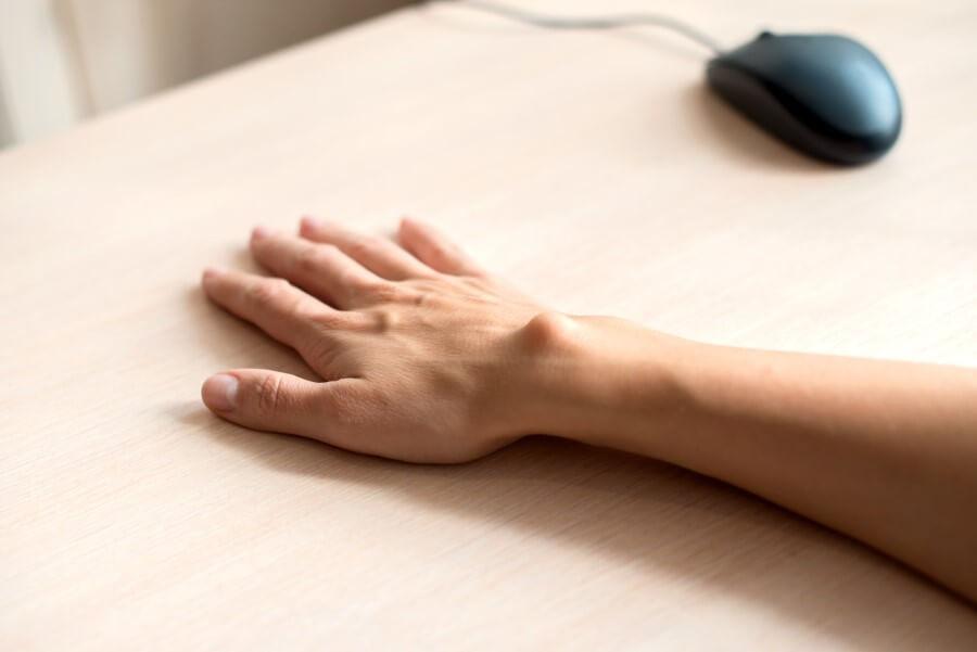 Kobieca dłoń leżąca na biurku. Na nadgarstku wyraźnie widoczny ganglion.