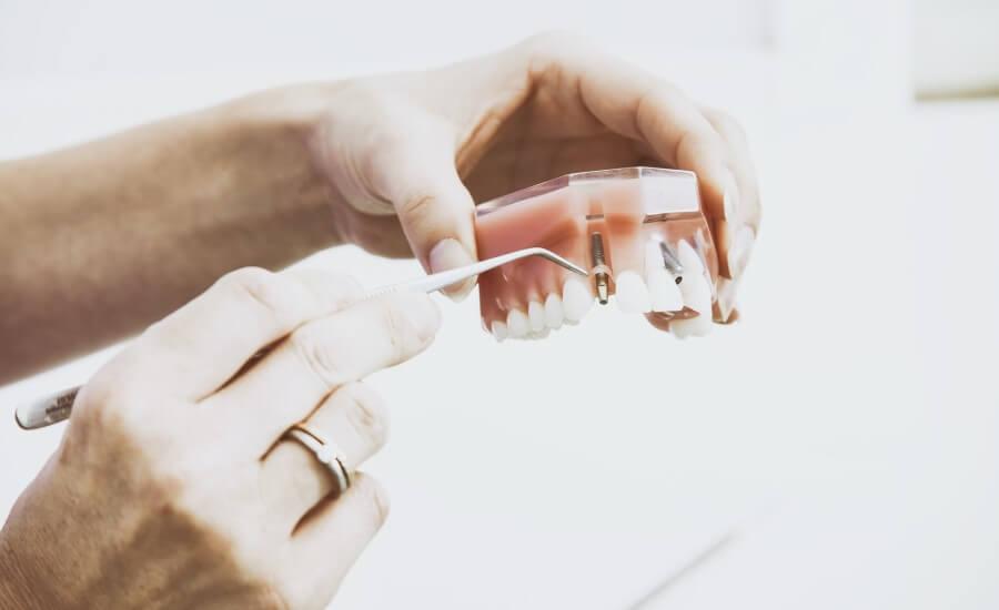 irygator do zębów