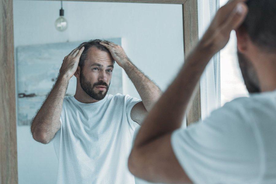 Jak przebiega mikropigmentacja skóry głowy?
