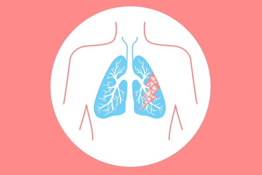 Jak rozpoznać zapalenie płuc?
