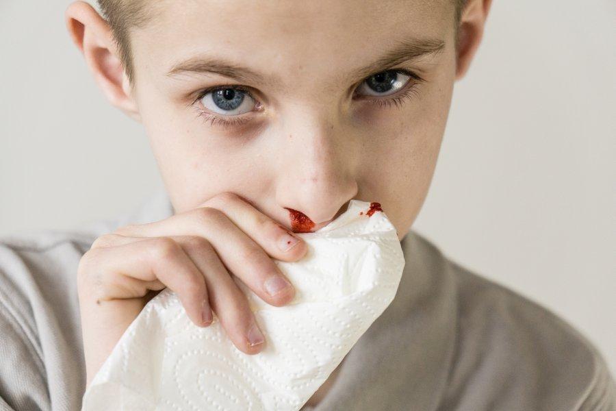 Chłopiec tamuje chusteczką krwotok z nosa