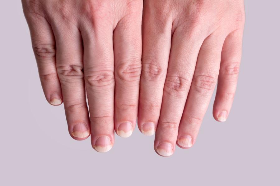 Dłonie z widoczną łuszczycą paznokci.