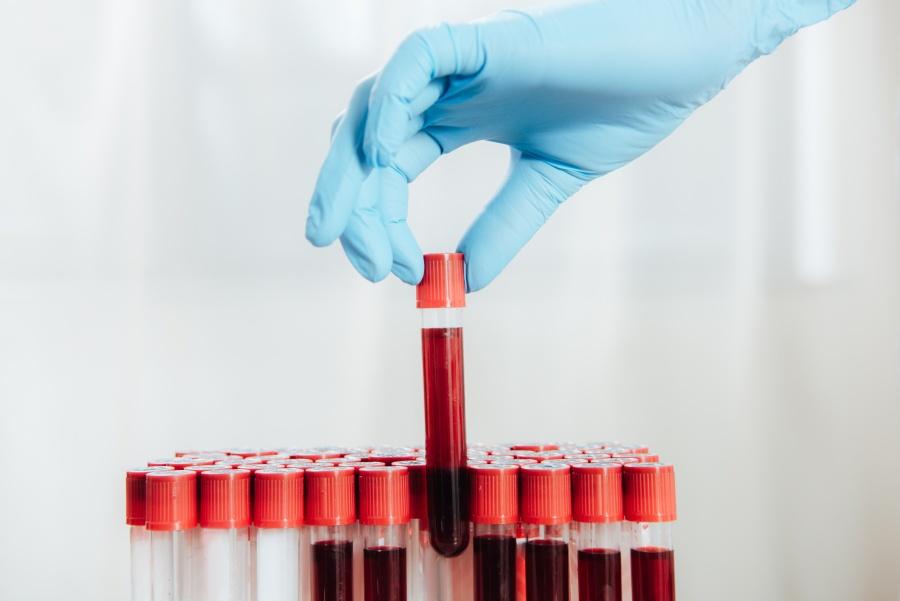 Morfologia – podstawowe badanie krwi