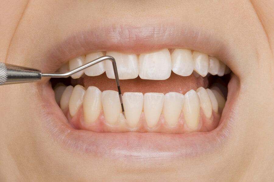 Zęby pacjenta podczas badania zgłębnikiem.