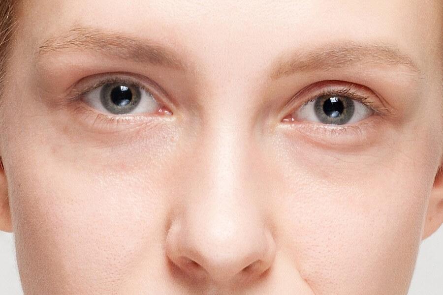 Podkrążone oczy - więcej niż problem estetyczny