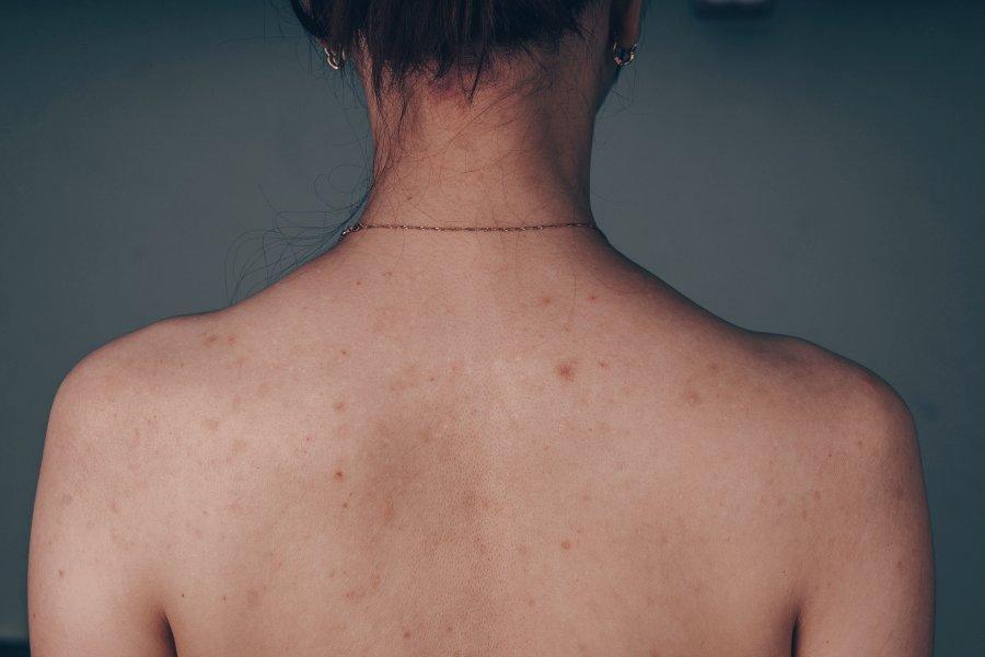 Pryszcze na plecach - jak się ich pozbyć?
