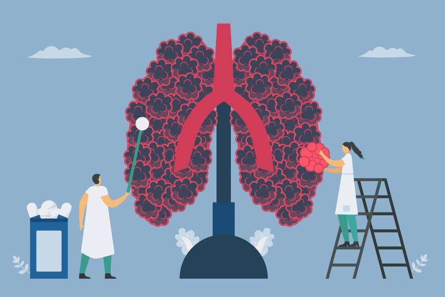 Grafika 2D ludzkich płuc z objawami rozedmy płuc.