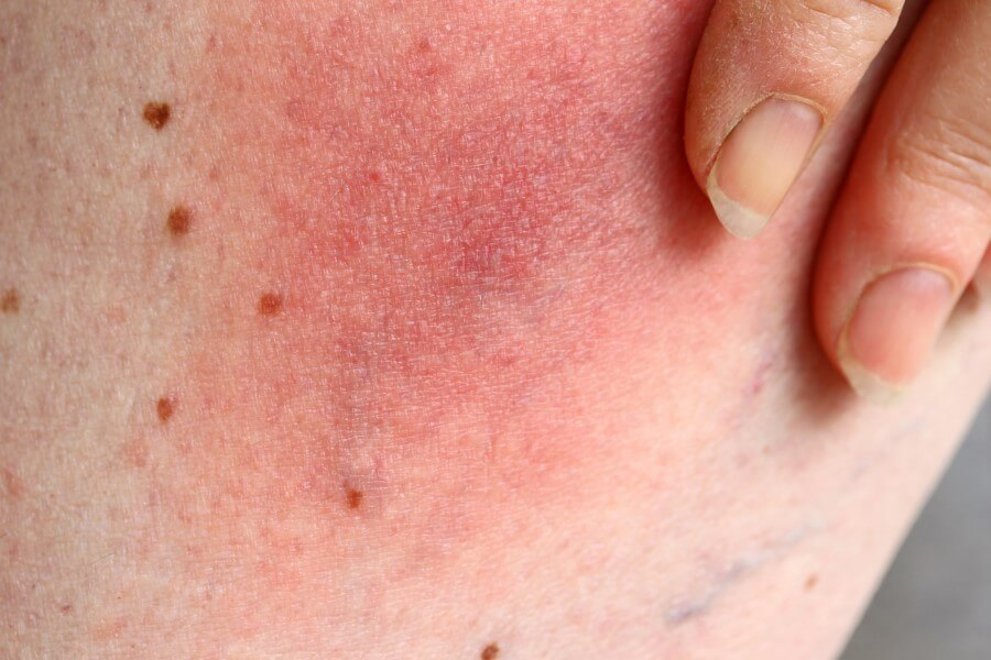 Rumień wędrujący na powierzchni skóry.