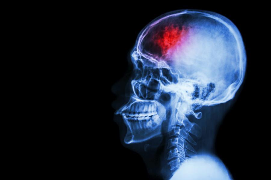 Udar niedokrwienny mózgu - przyczyny, diagnostyka i leczenie KtoMaLek.pl