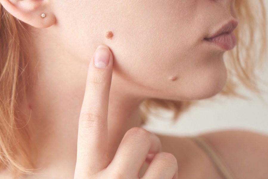 Zbliżenie na policzek młodej kobiety, która palcem wskazuje na istniejące znamię skórne.
