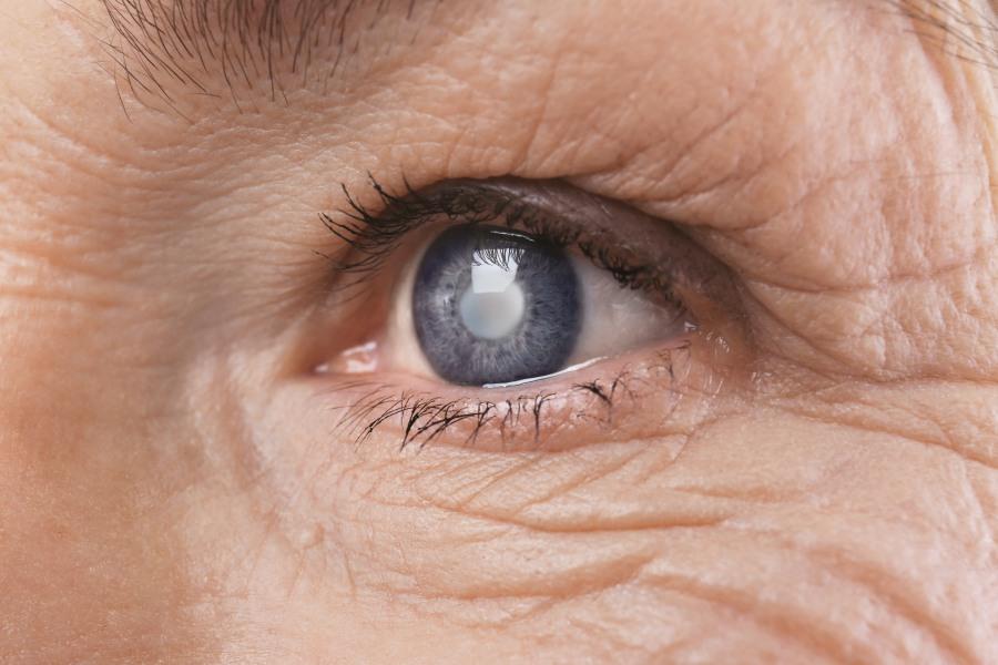 Zaćma - objawy i sposoby usuwania katarakty