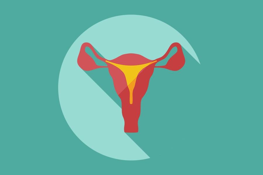 Zespół policystycznych jajników – przyczyny, objawy, leczenie